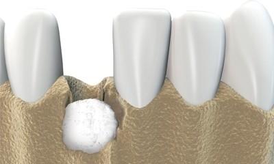 Bone Grafting and Sinus Lift