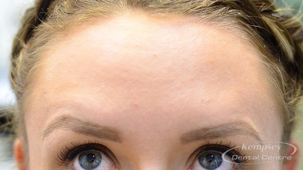After-FacialInjectables-3