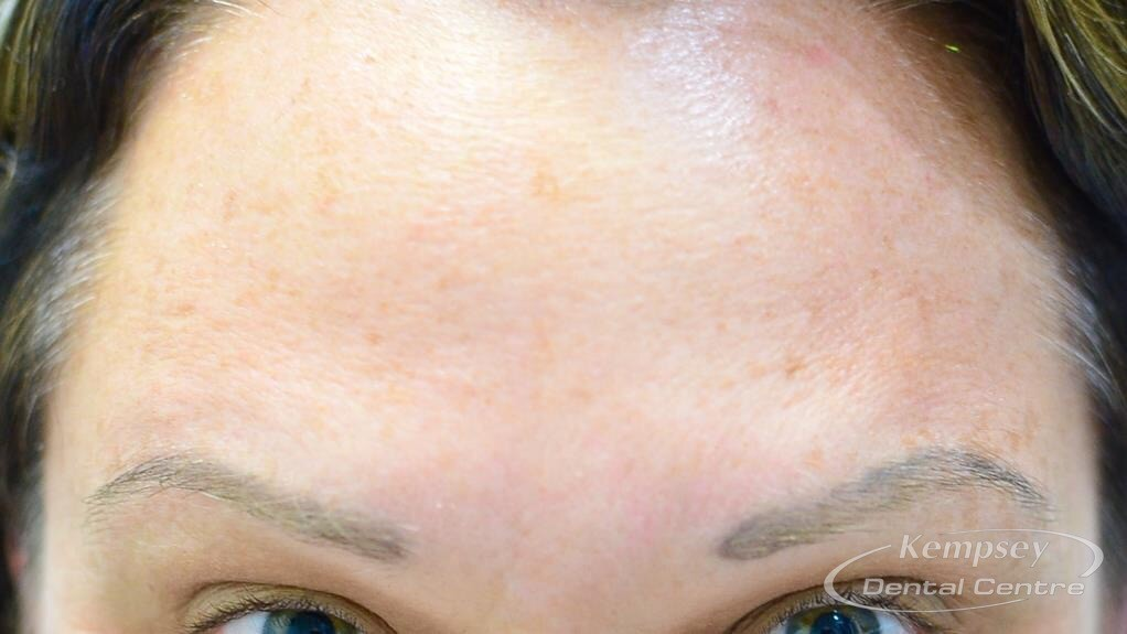 After-FacialInjectables-4