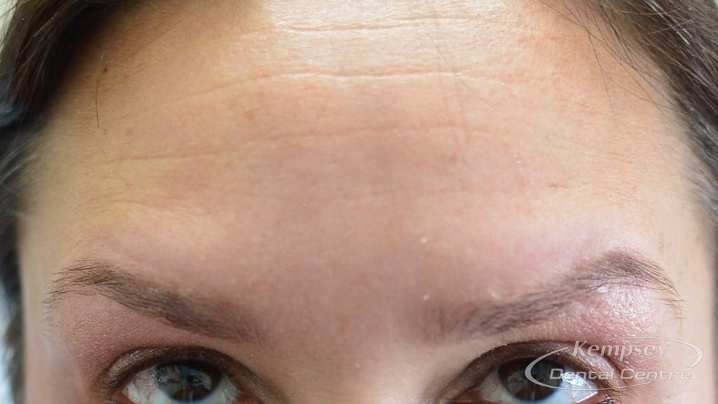 After-FacialInjectables-5