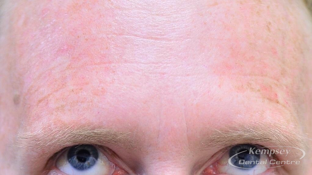 After-FacialInjectables-6