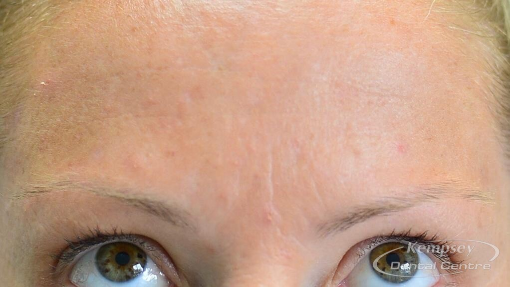 After-FacialInjectables-7