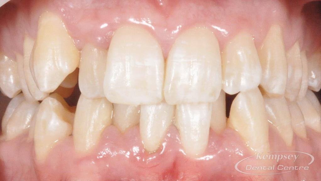 Before- Orthodontics-10
