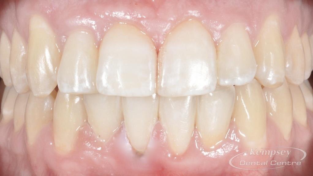 After- Orthodontics-10
