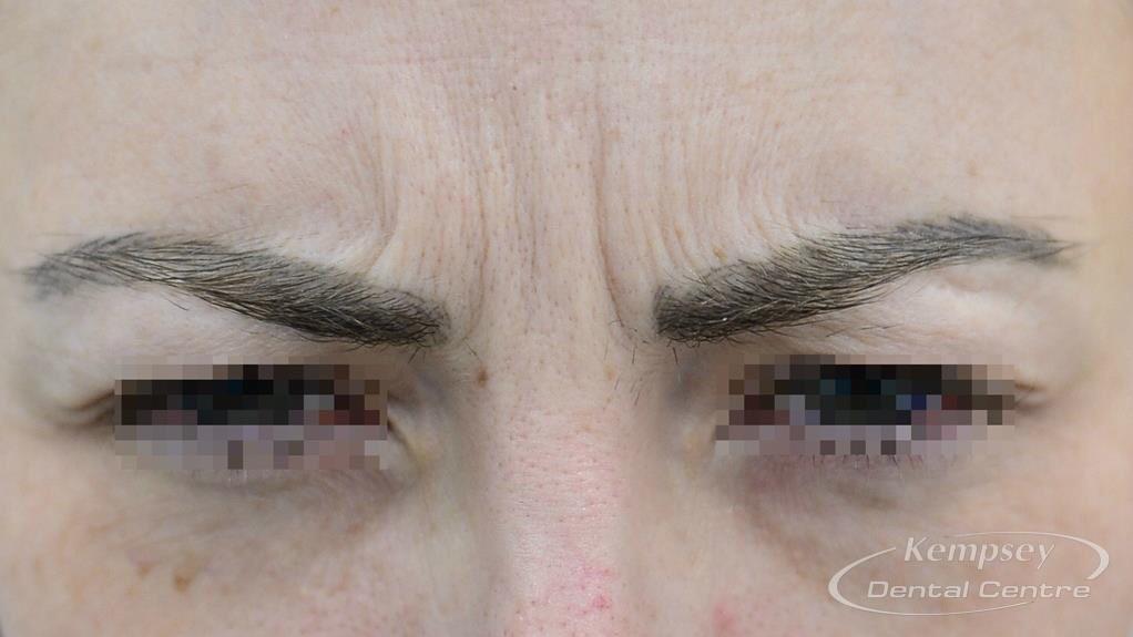 Before-FacialInjectables-12