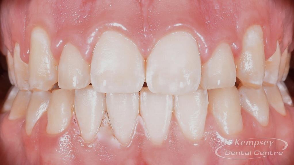 After- Orthodontics-11