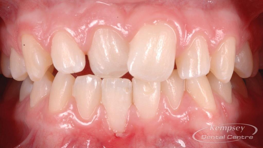 Before- Orthodontics-12