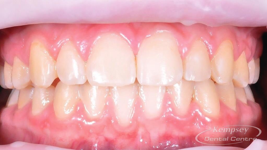 After- Orthodontics-12