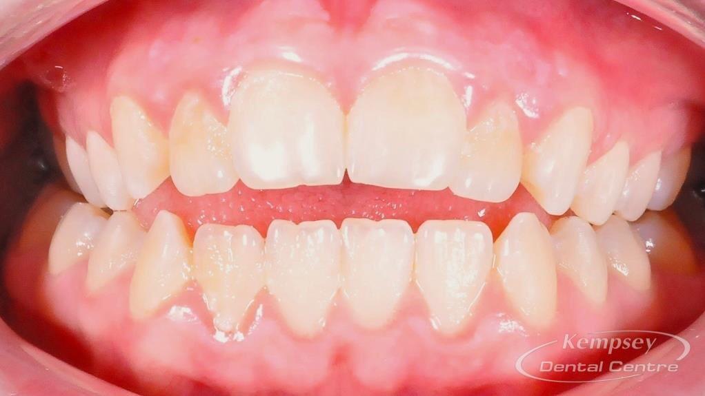 Before- Orthodontics-13