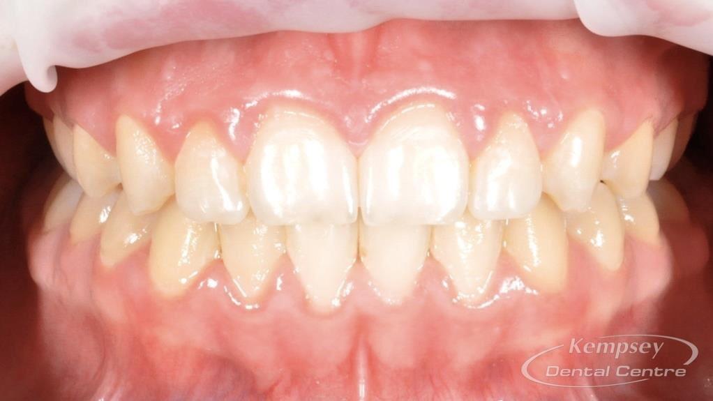 After- Orthodontics-13