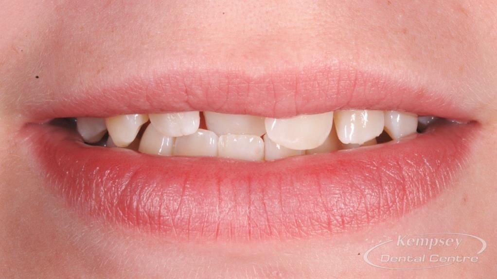 Before- Orthodontics-14