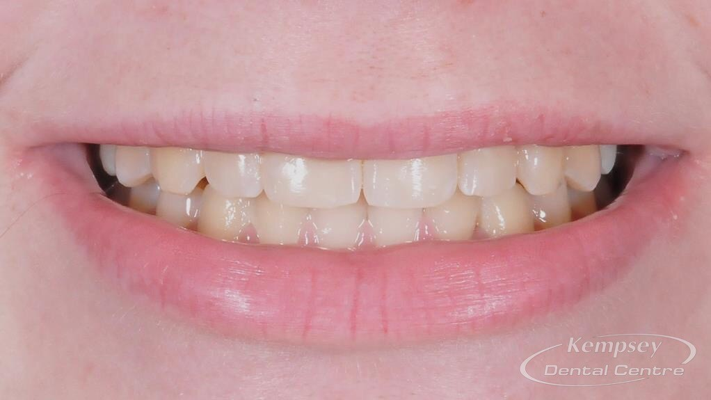 After- Orthodontics-14