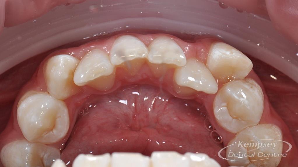 Before- Orthodontics-27