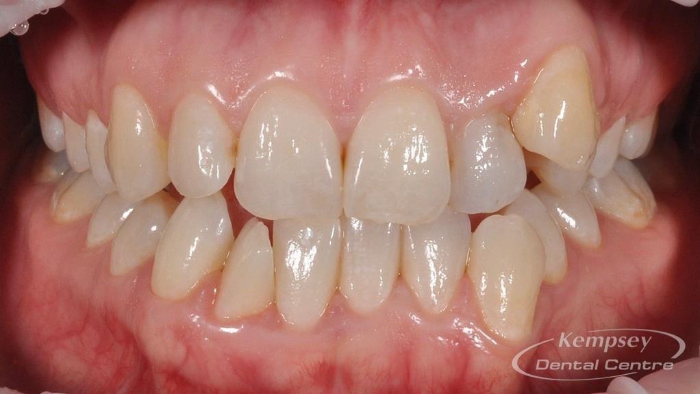 Before- Orthodontics-34