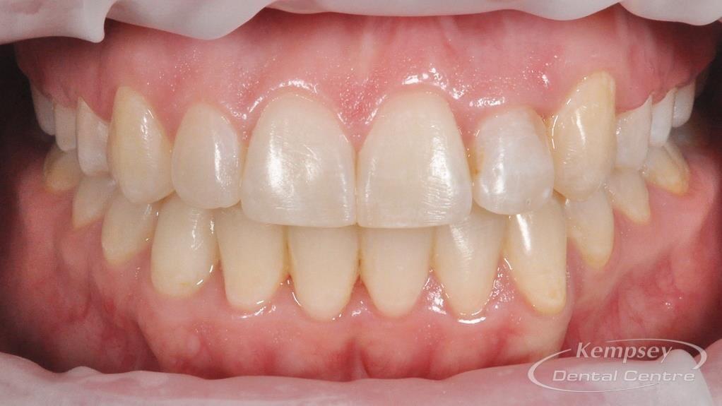 After- Orthodontics-34