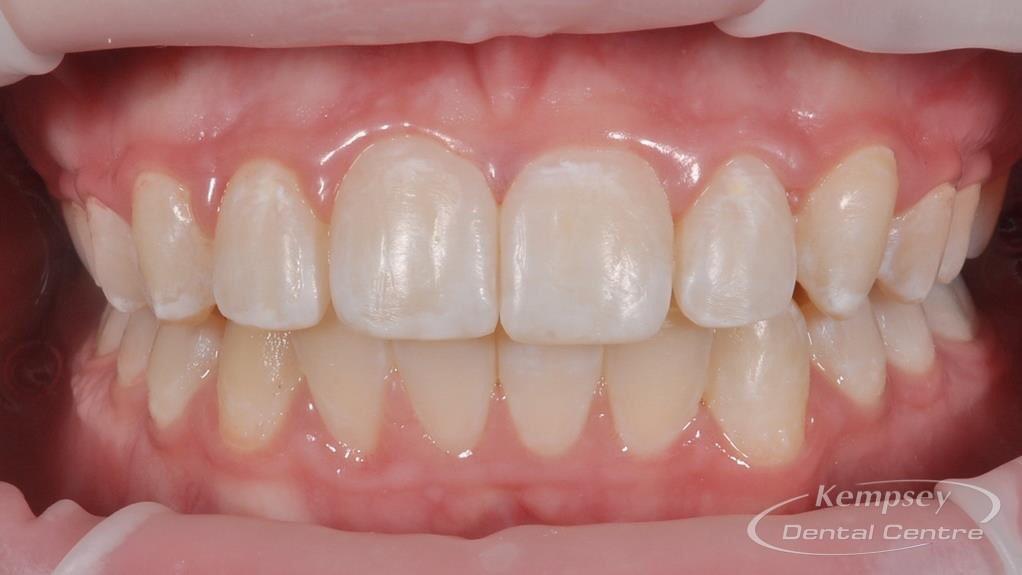 After- Orthodontics-37