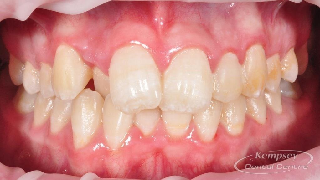 Before- Orthodontics-39
