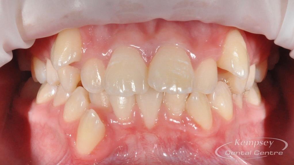 Before- Orthodontics-3