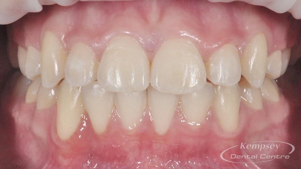 After- Orthodontics-3
