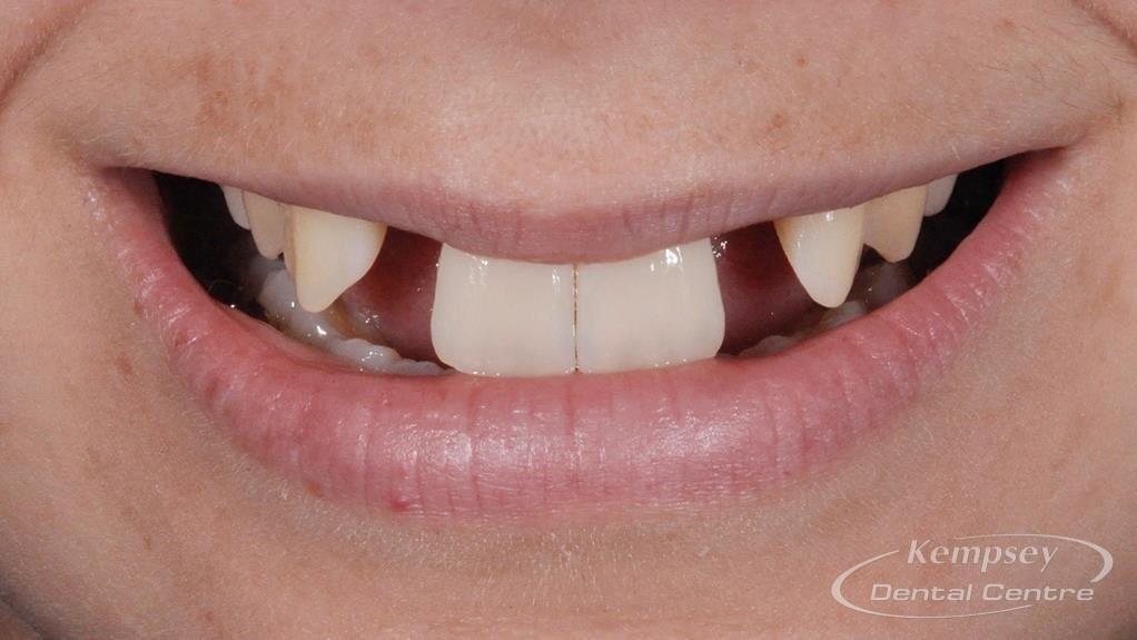 Before-Implants-2