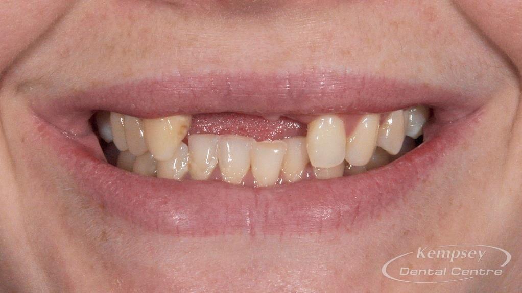 Before-Implants-8