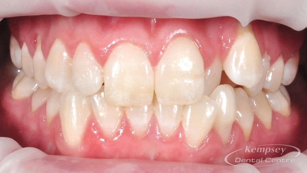 Before- Orthodontics-40