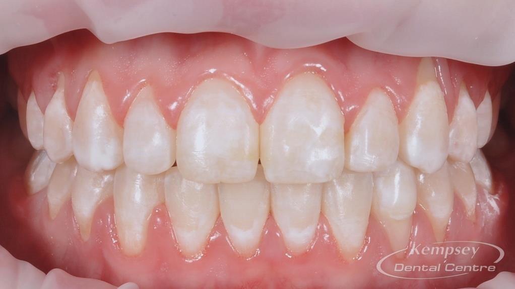 After- Orthodontics-40