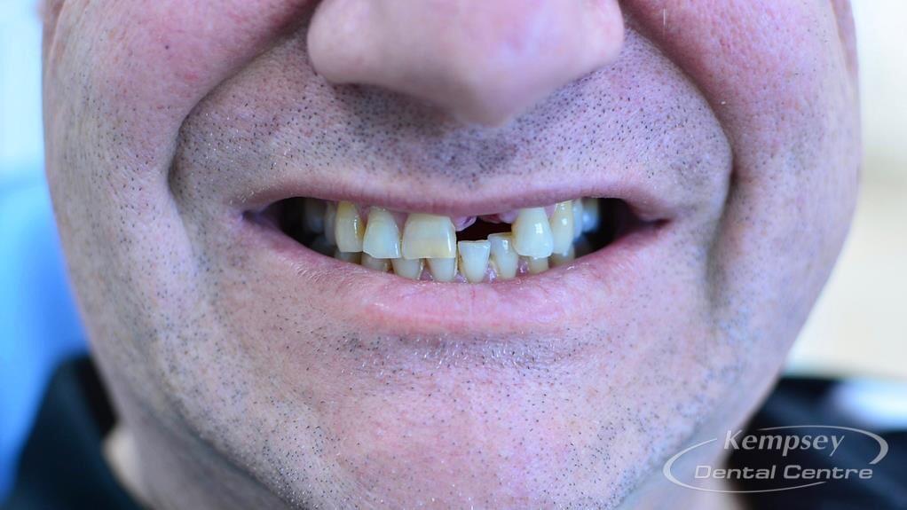 Before-Implants-11