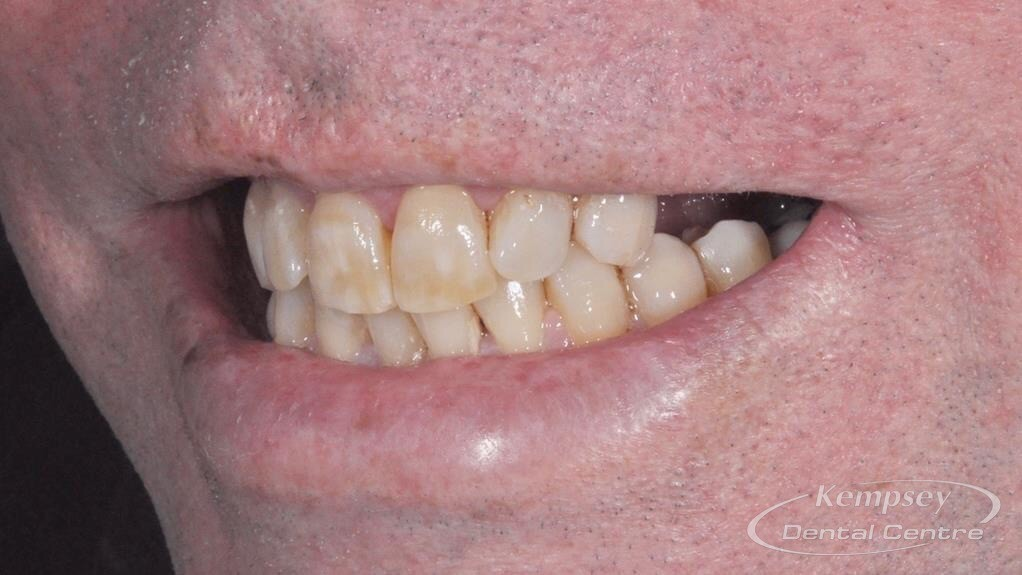Before-Implants-12