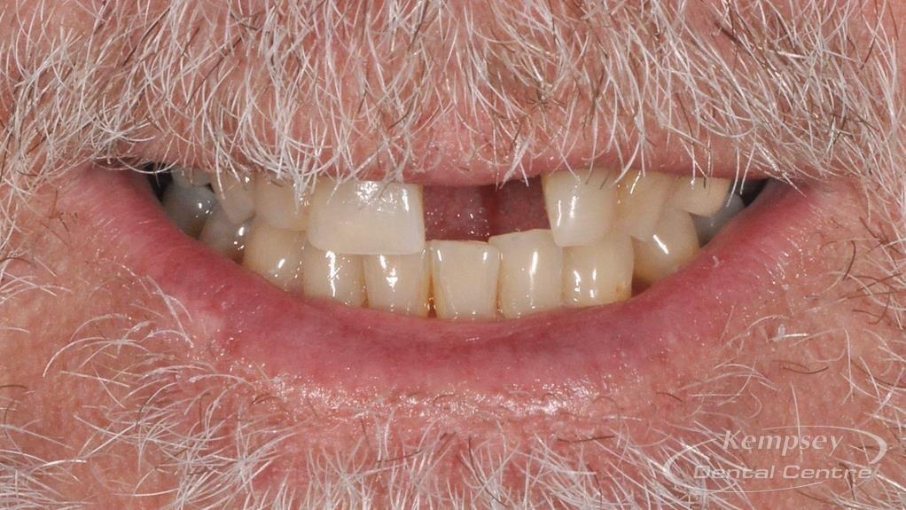 Before-Implants-14