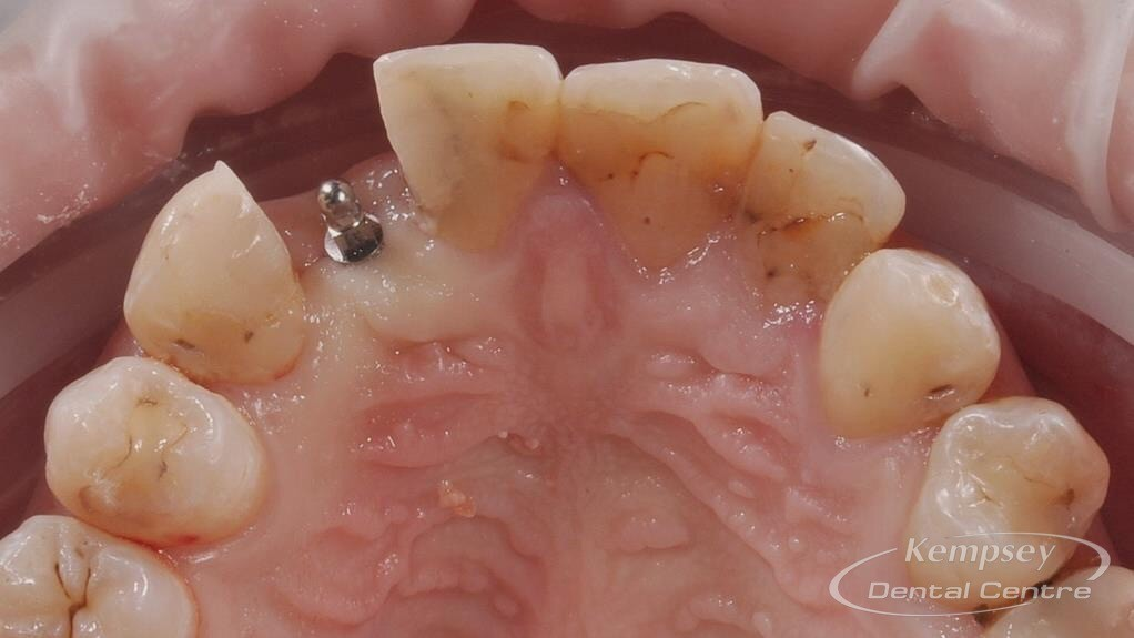 Before-Implants-18