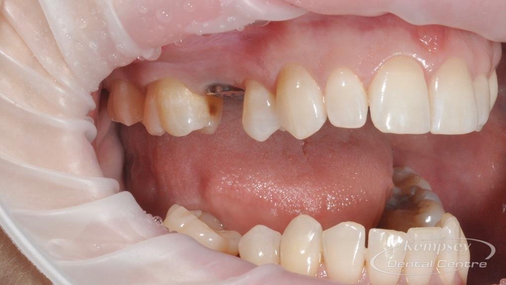 Before-Implants-20