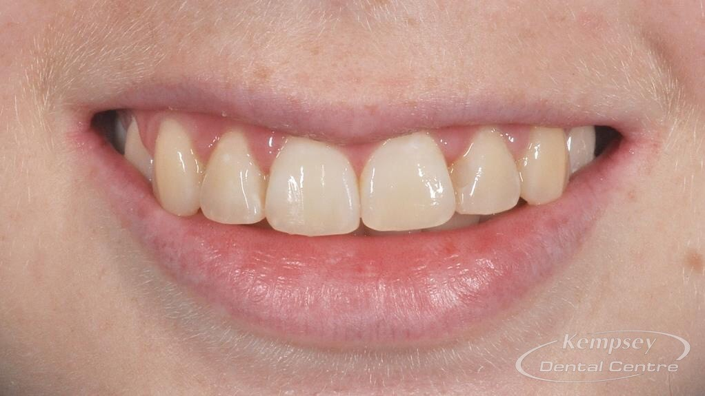 After- Orthodontics-42