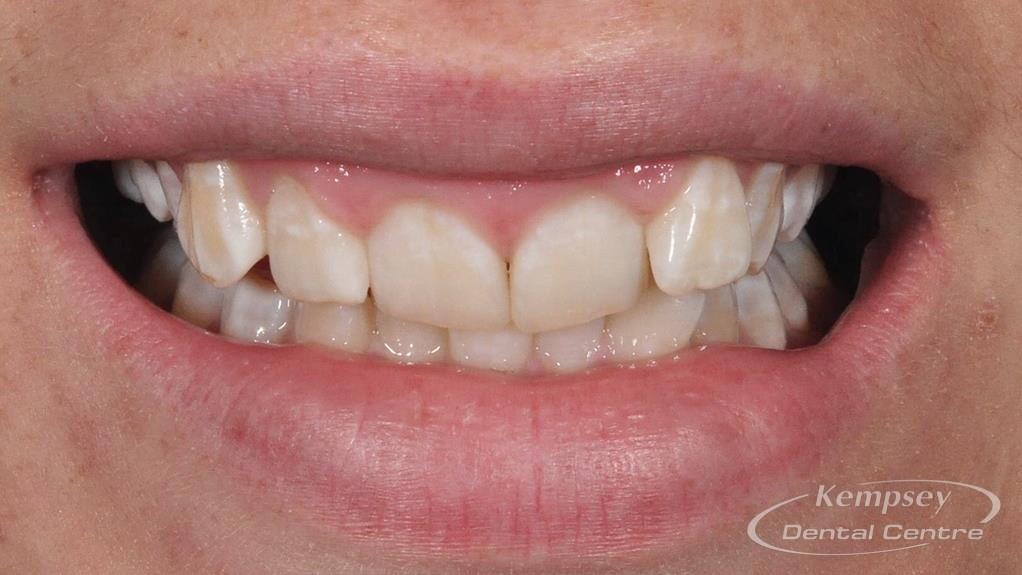 Before- Orthodontics-45