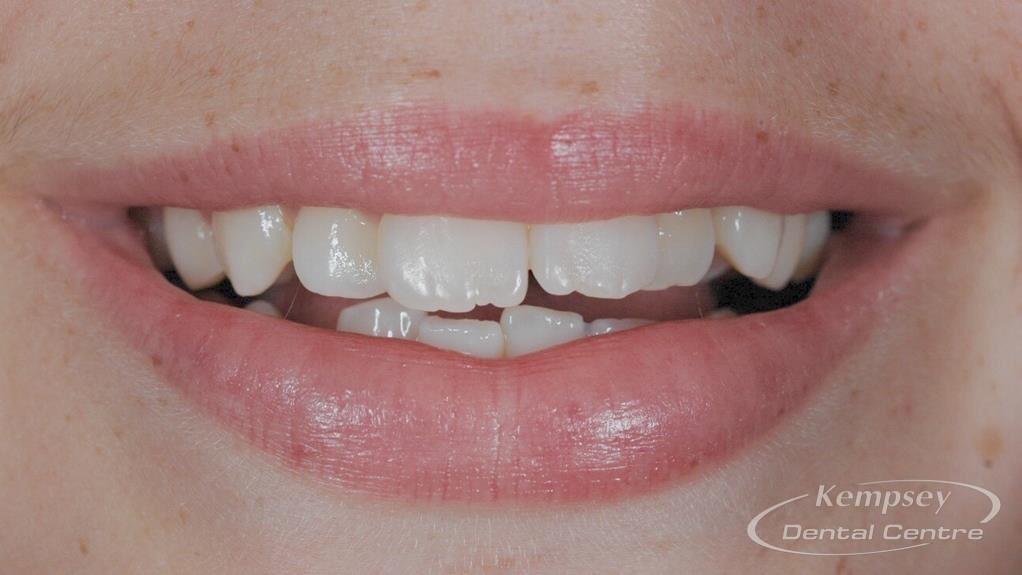 Before- Orthodontics-46