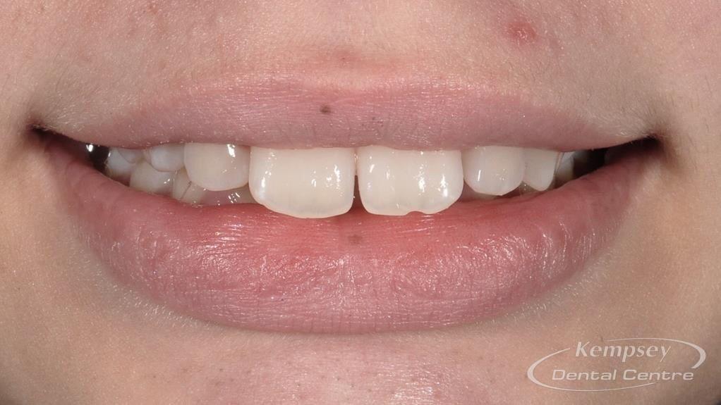 Before- Orthodontics-47