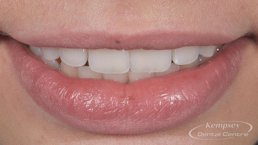After- Orthodontics-47
