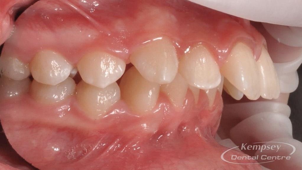 Before- Orthodontics-48