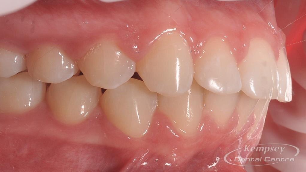 After- Orthodontics-48
