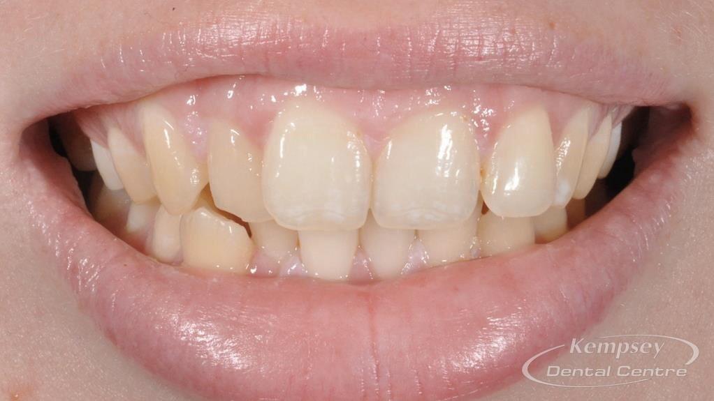 Before- Orthodontics-4