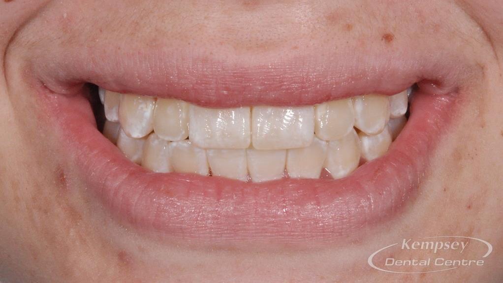 After- Orthodontics-50
