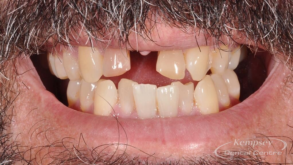 Before- Orthodontics-52