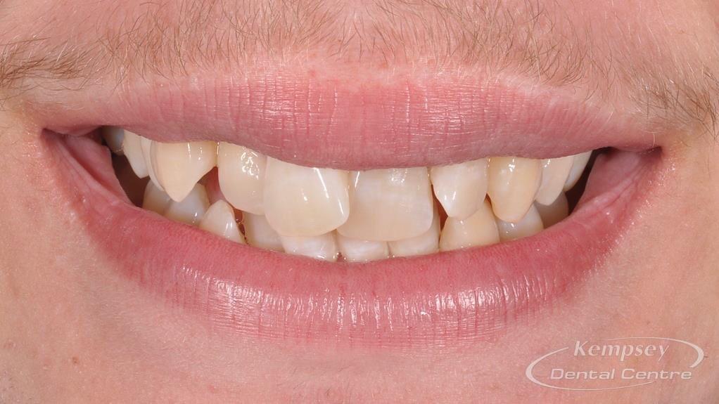 Before- Orthodontics-54