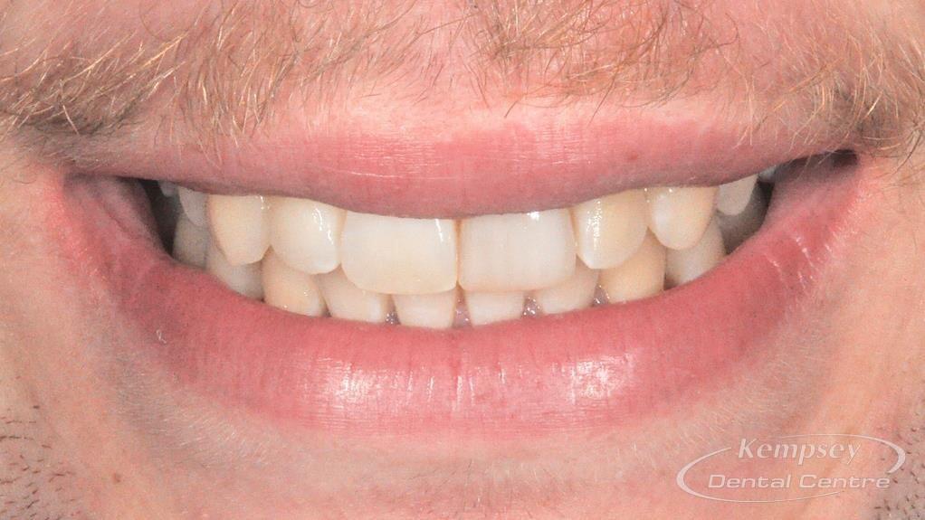 After- Orthodontics-54