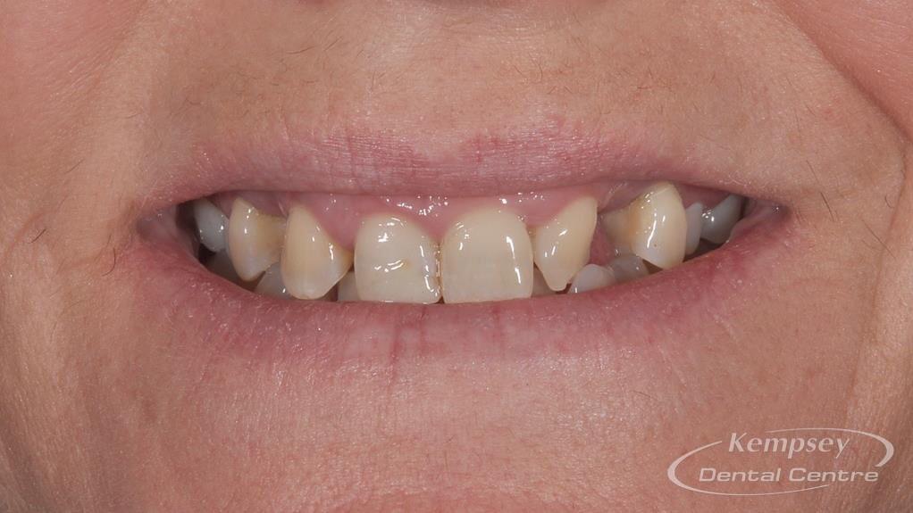 Before- Orthodontics-55