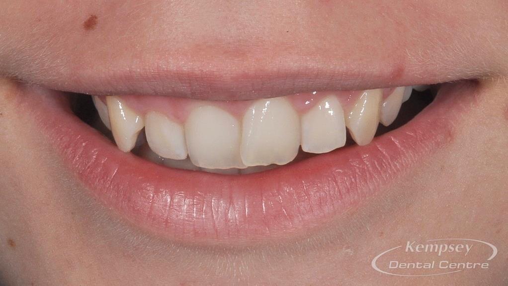 Before- Orthodontics-56