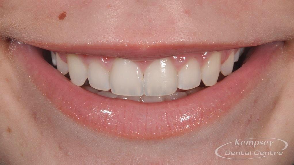 After- Orthodontics-56