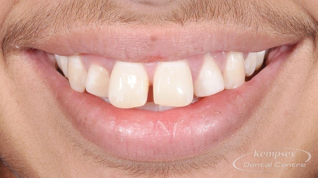 Before- Orthodontics-57