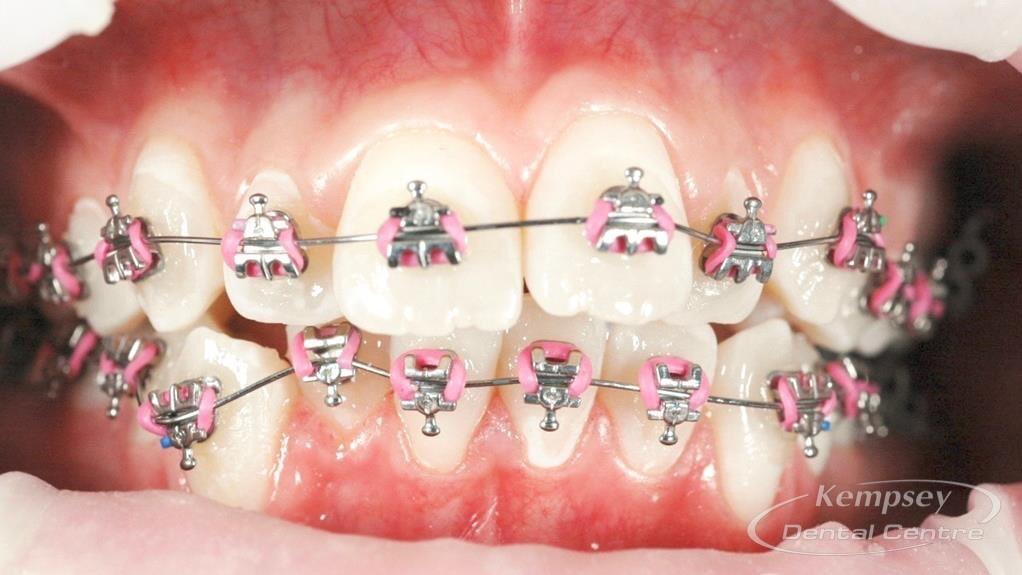 Before- Orthodontics-58