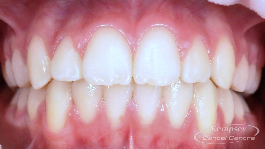After- Orthodontics-58